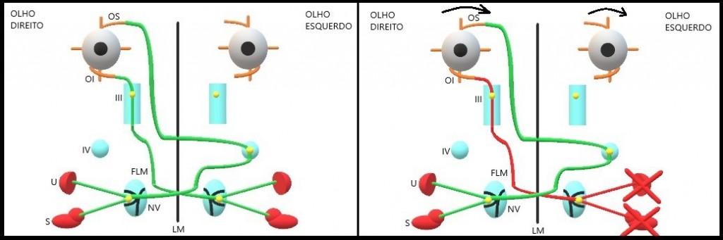 Fig 1. Representação gráfica da via neural via fascículo longitudinal medial em (A) normal e (B) com lesão periférica unilateral. S: Sáculo; U: Utrículo; NV: Núcleo vestibular; LM: Linha média; FLM: Fasciculo longitudinal medial; IV: Núcleo troclear; III: Núcleo oculomotor; OI: Músculo obliquo inferior; OS: Músculo oblíquo superior.